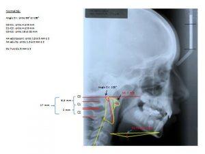 Ceph 1-orthodontie-drelafond