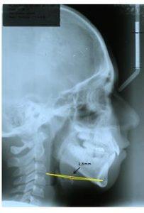 Ceph-oshyoidepositif2-orthodontie-drelafond