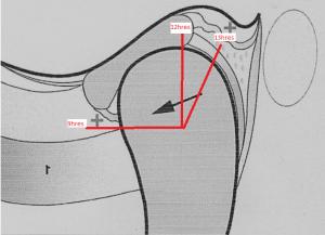 Disque-orthodontie-drelafond