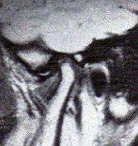 Disquedéplacé11h-orthodontie-drelafond