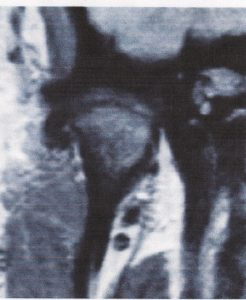 vuecoronale-disquedéplacéexterne-orthodontie-drelafond