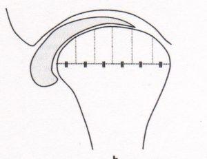 vuecoronale-disquedéplacéinterne-orthodontie-drelafond