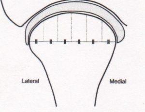 vuecoronale-orthodontie-drelafond