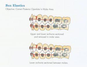 elastiques-en-forme-de-boite