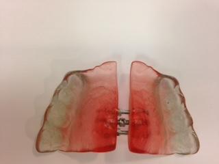 expanseur2-orthodontie-drelafond