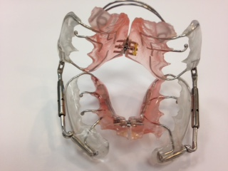 pul-orthodontie-drelafond
