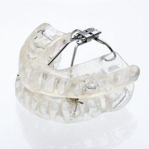 klearway-01-orthodontie-drelafond