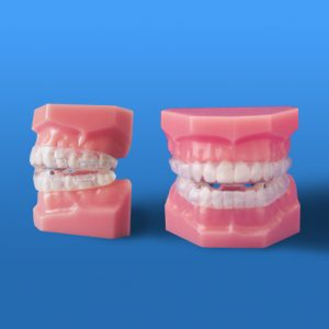klearway-02-orthodontie-drelafond