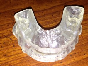 tongue-trainer-2-orthodontie-drelafond